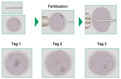 ICSI and Embryo Development